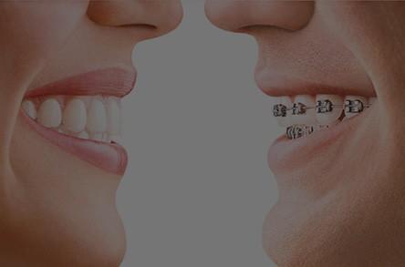 Denton Orthodontic Centre – Teeth Straightening Specialists